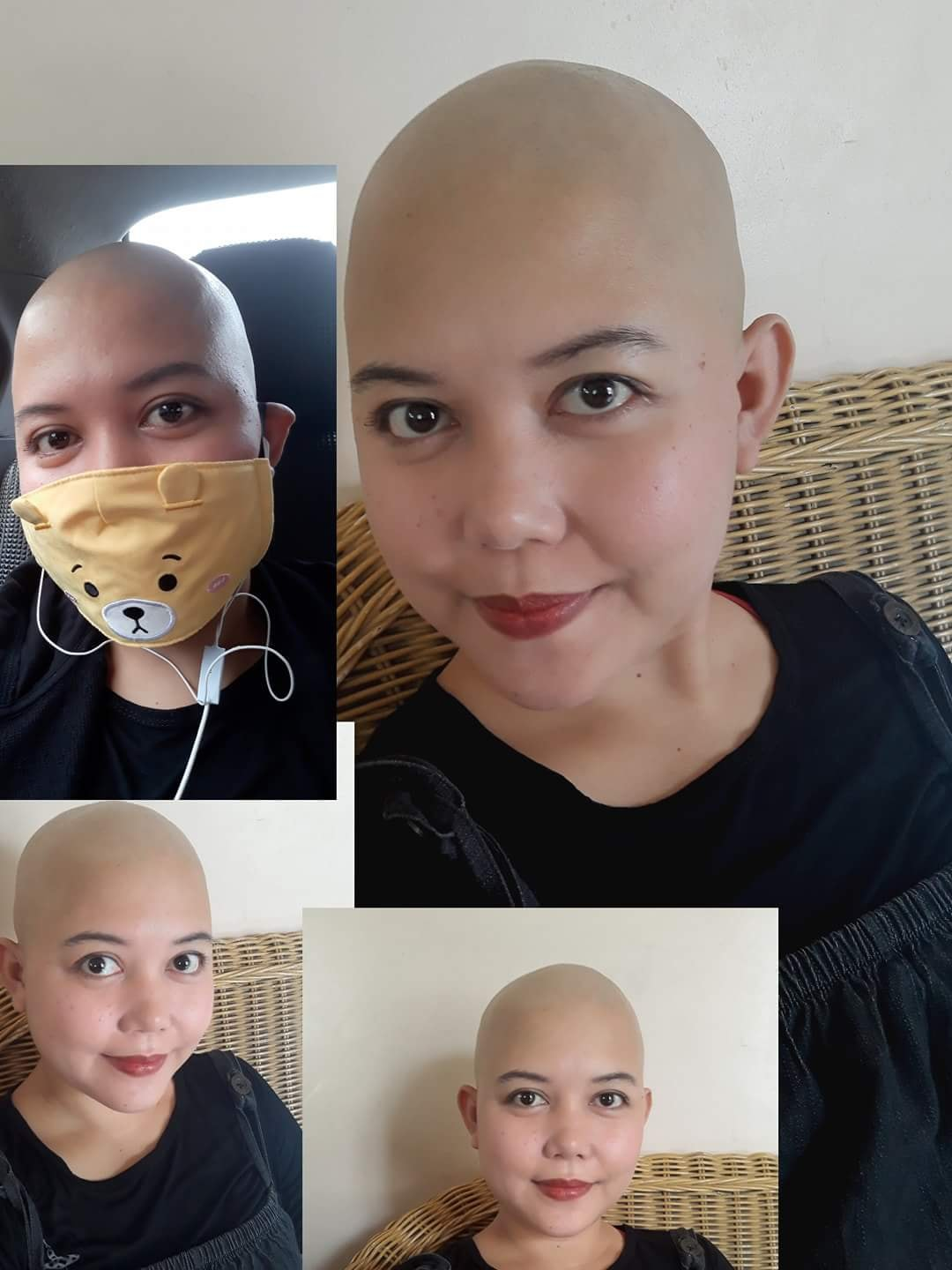 My Sister Is Battling Ovarian Cancer Stage 1c Medical Bills Fundraising With Gogetfunding