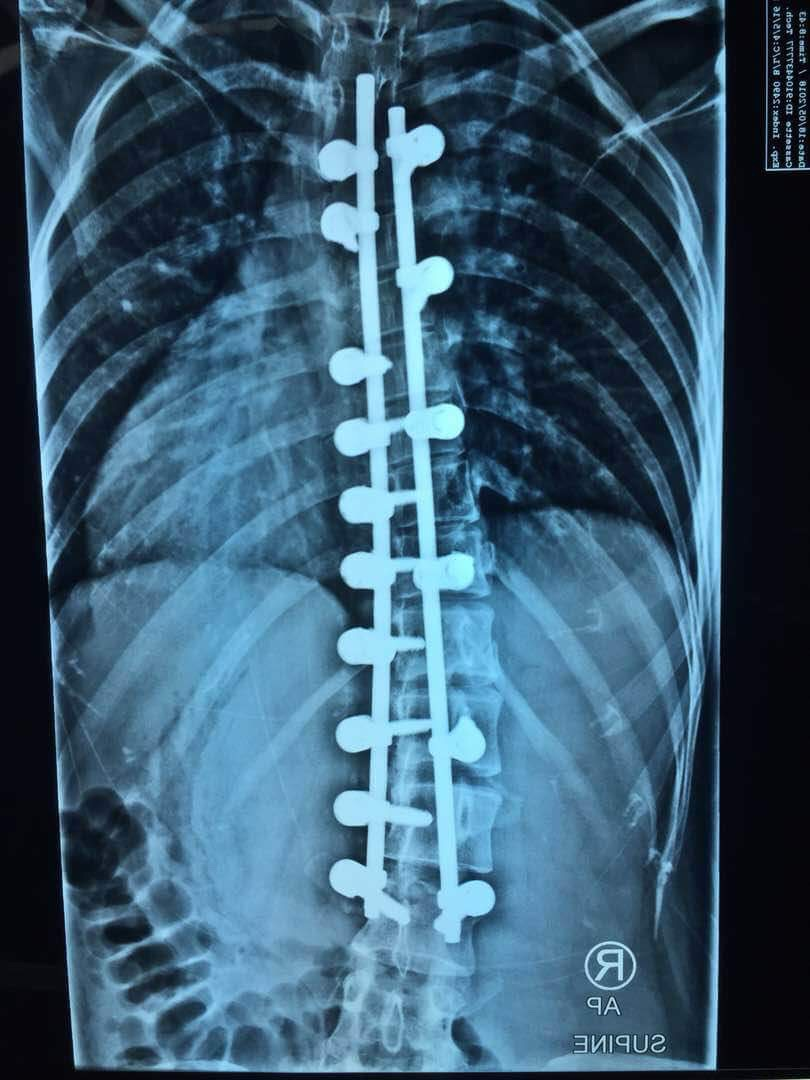 Front view of her back after surgery